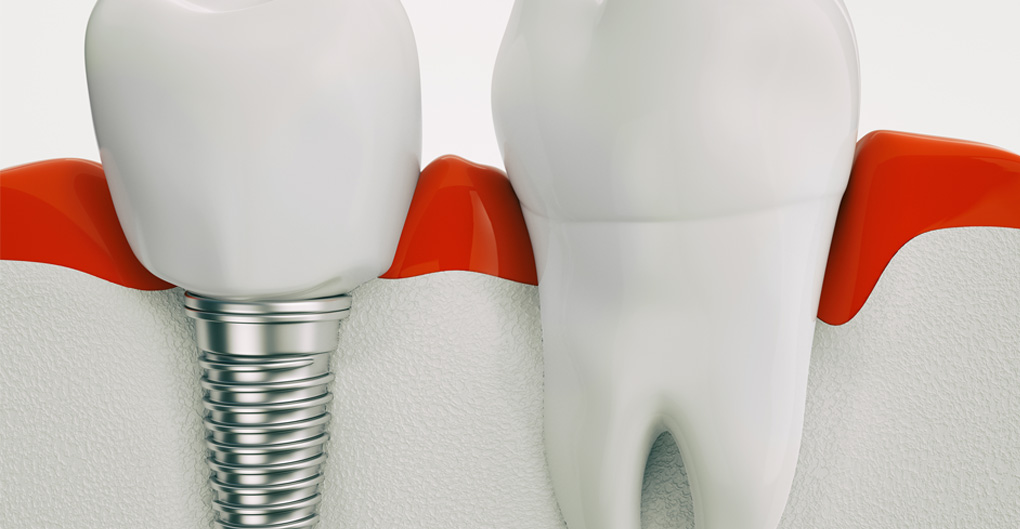 dental-implants-montreal-surgeons.jpg