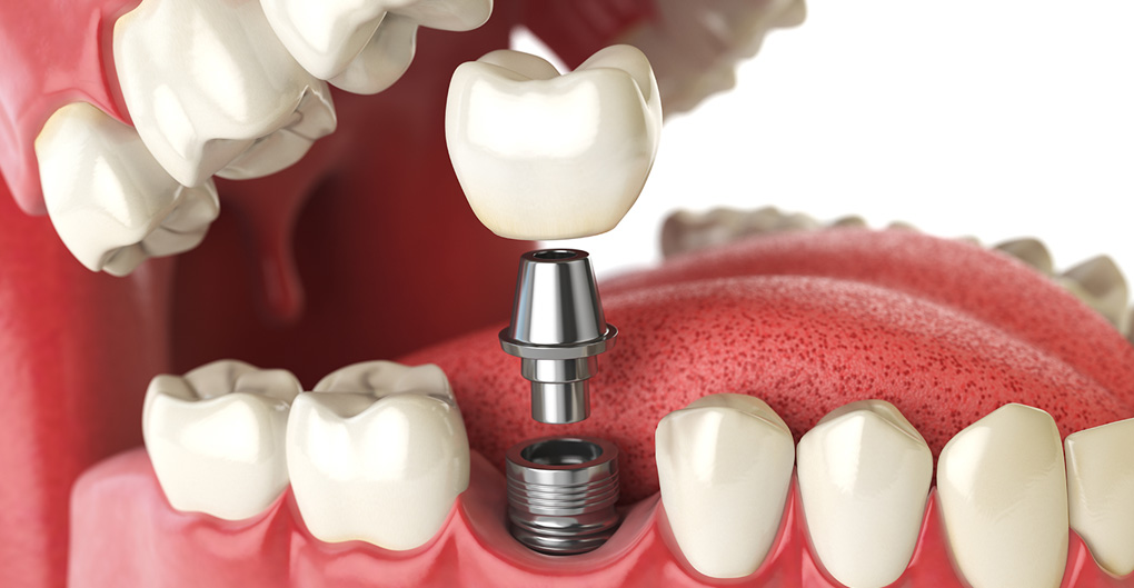 dental-implants-specialist.jpg