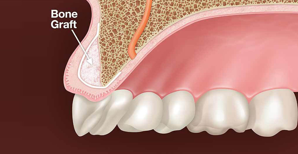bone-graft-for-dental-implants.jpg
