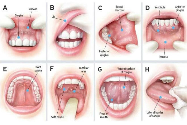 Maxillovendome 8 steps to screen oral cancer