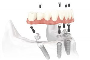 Montreal All On 4 Dental Implants