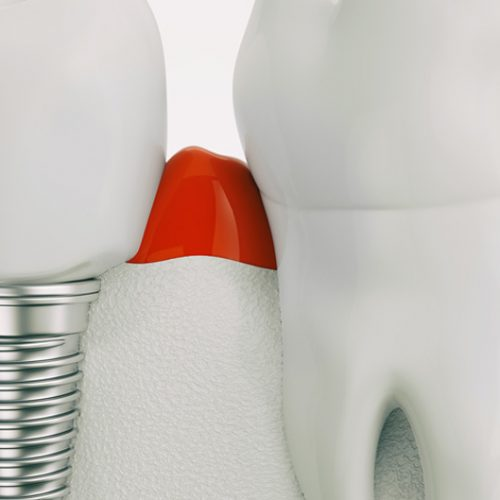 Dental Implants Specialist