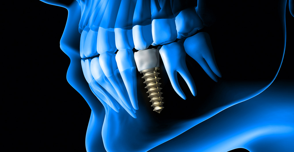 Same Day Dental Implant Surgery