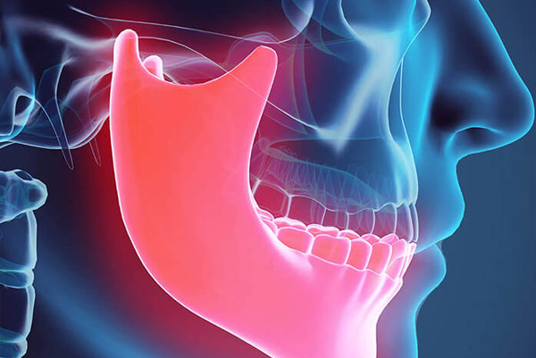 Corrective Jaw Surgery (Orthognathic) | Maxillovendome Oral & Facial Surgery
