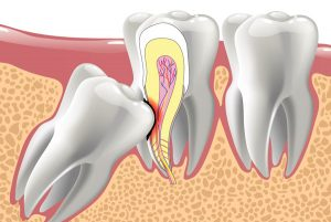 Wisdom Teeth Removal In Montreal