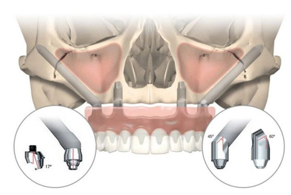 Zygomatic Implants | Dr. Michel El-Hakim